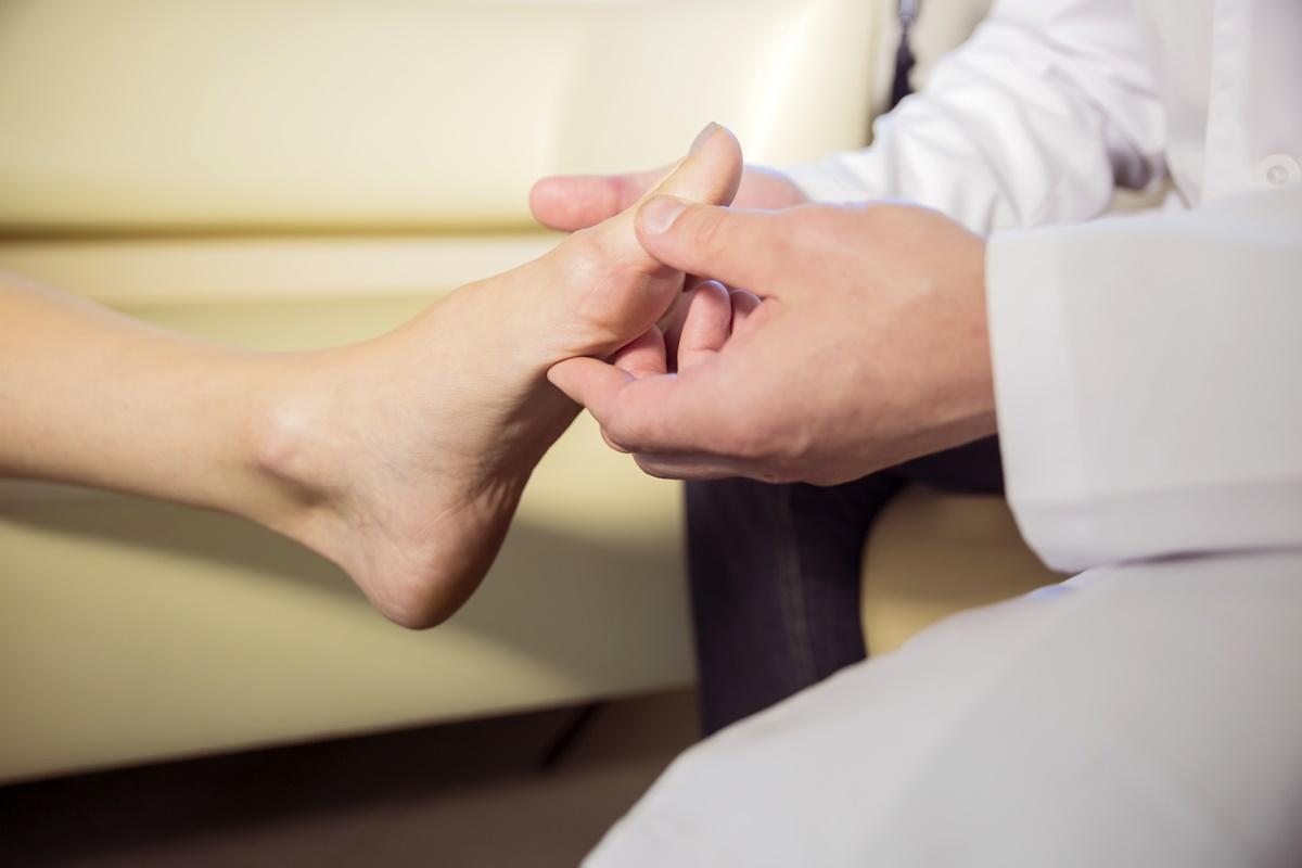 Joanete – Sintomas, causas e tratamento