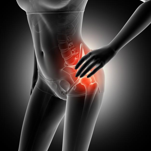 Síndrome do piriforme: sintomas e causas